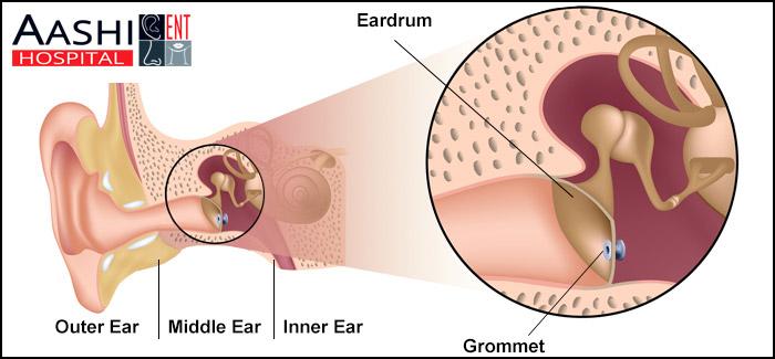 Gromments