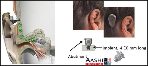 Hearing AIDS, Ear surgery in Ahmedabad