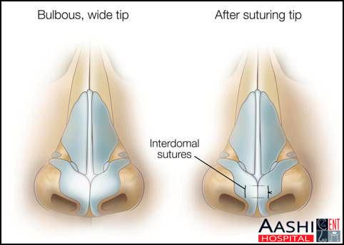 Septorhinoplasty, Nose and sinus surgery