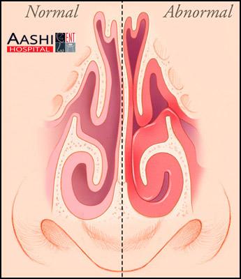 Turbinate Trimming and Diathermy