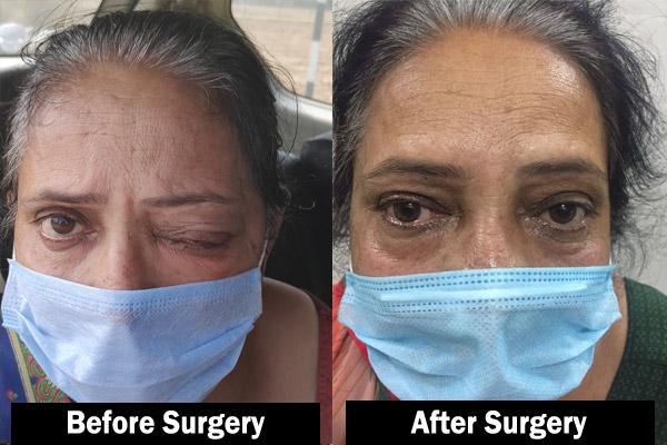 Mucormycosis Surgery