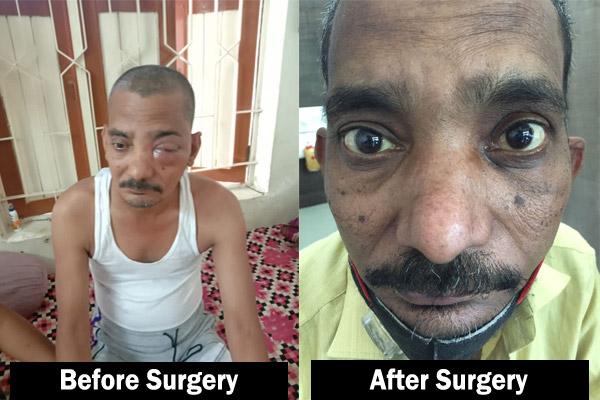 sinonasal mucormycosis treatment